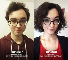 Transexual women before and after